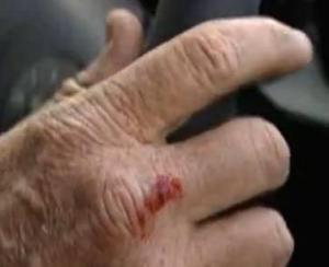 reims hand